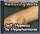 Removing Warts - Self-Hypnosis by Hypnoharmonie